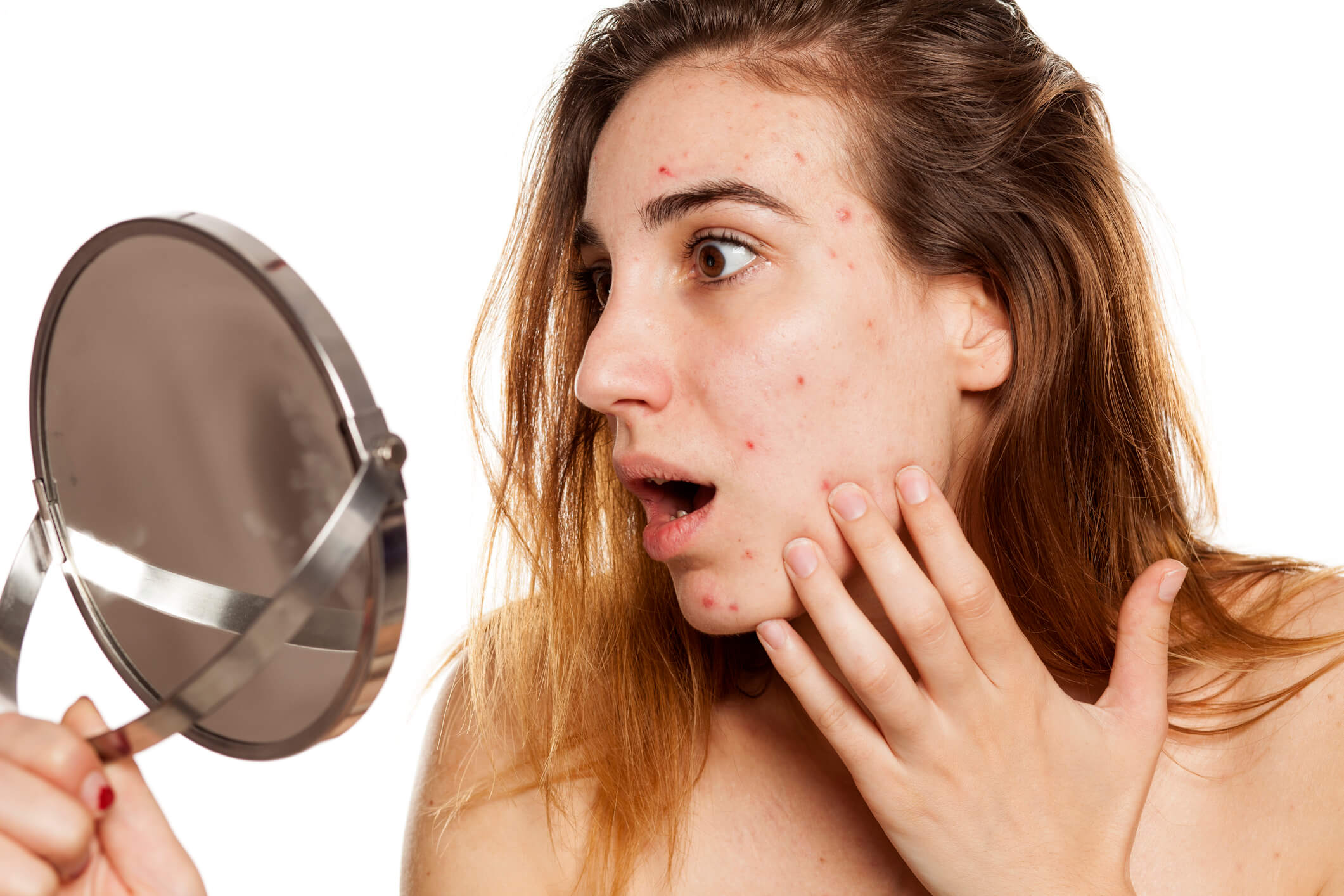 Woman Looking at Mild Acne in Mirror