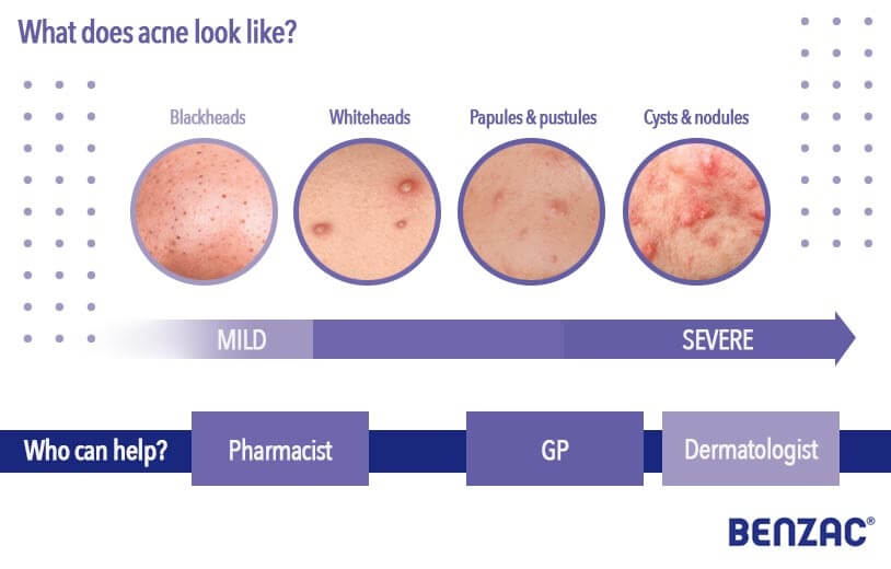 infographic depicting types of acne